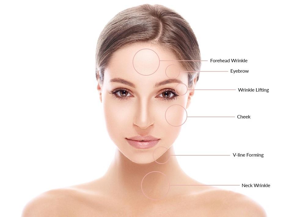 Ultrasons visage